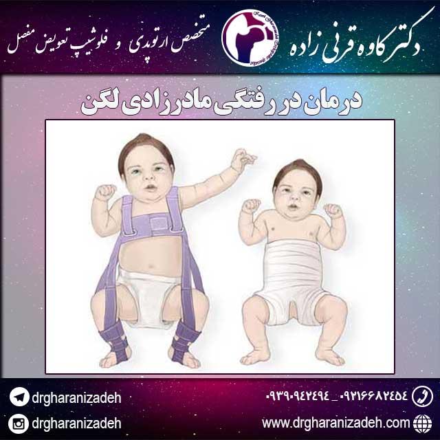 در رفتگی مادرزادی لگن در رفتگی مادرزادی لگن به دلیل قرار نگرفتن صحیح سر استخوان ران در داخل حفره استابولوم لگن ایجاد می شود. شدت میزان در رفتگی مادرزادی