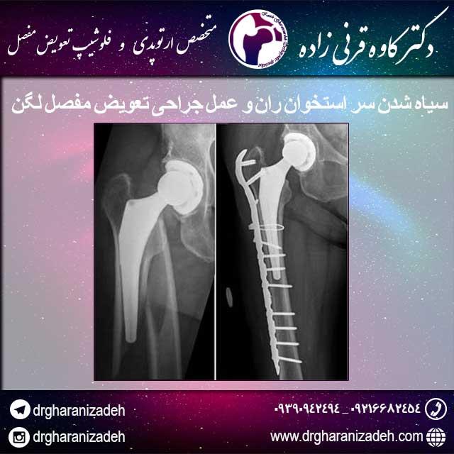 سیاه شدن سر استخوان ران و عمل جراحی تعویض مفصل لگن