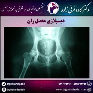 دیسپلازی مفصل ران