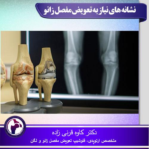 نشانه های نیاز به تعویض مفصل زانو